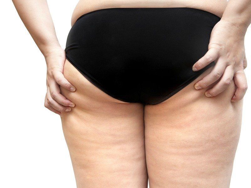 Rid Cellulite Naturally