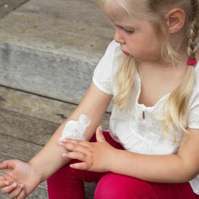 7 eczema remedies that work