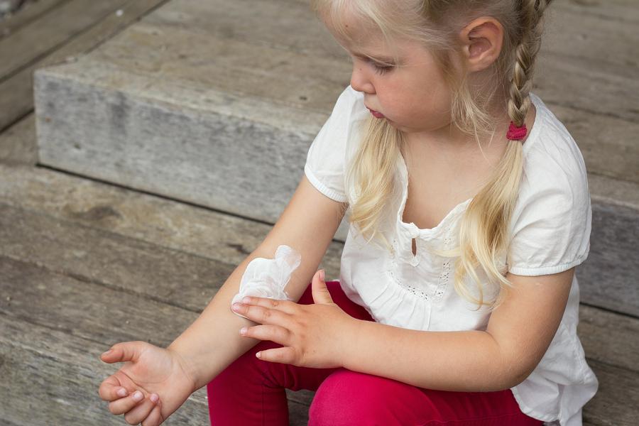 7 Eczema Remedies That Work