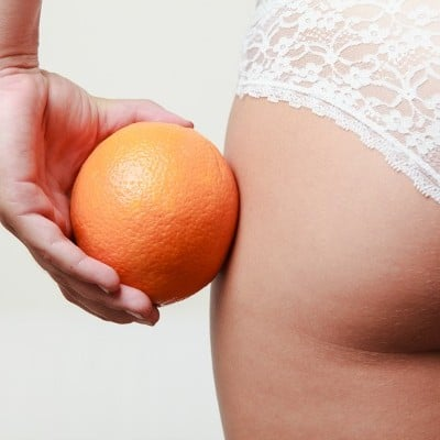 How to Get Rid of Cellulite: 10 Natural Remedies That Work