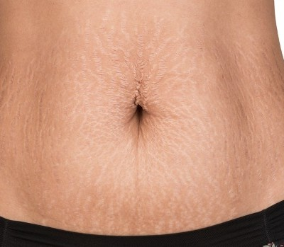 How to Get Rid of Stretch Marks Naturally: 10 Tips That Work