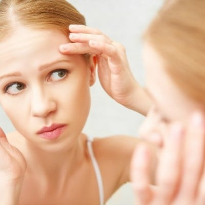 10 Natural Acne Remedies That Work