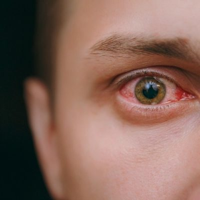 Home Remedies for Pink Eye: 8 Natural Remedies for Pink Eye that Work!