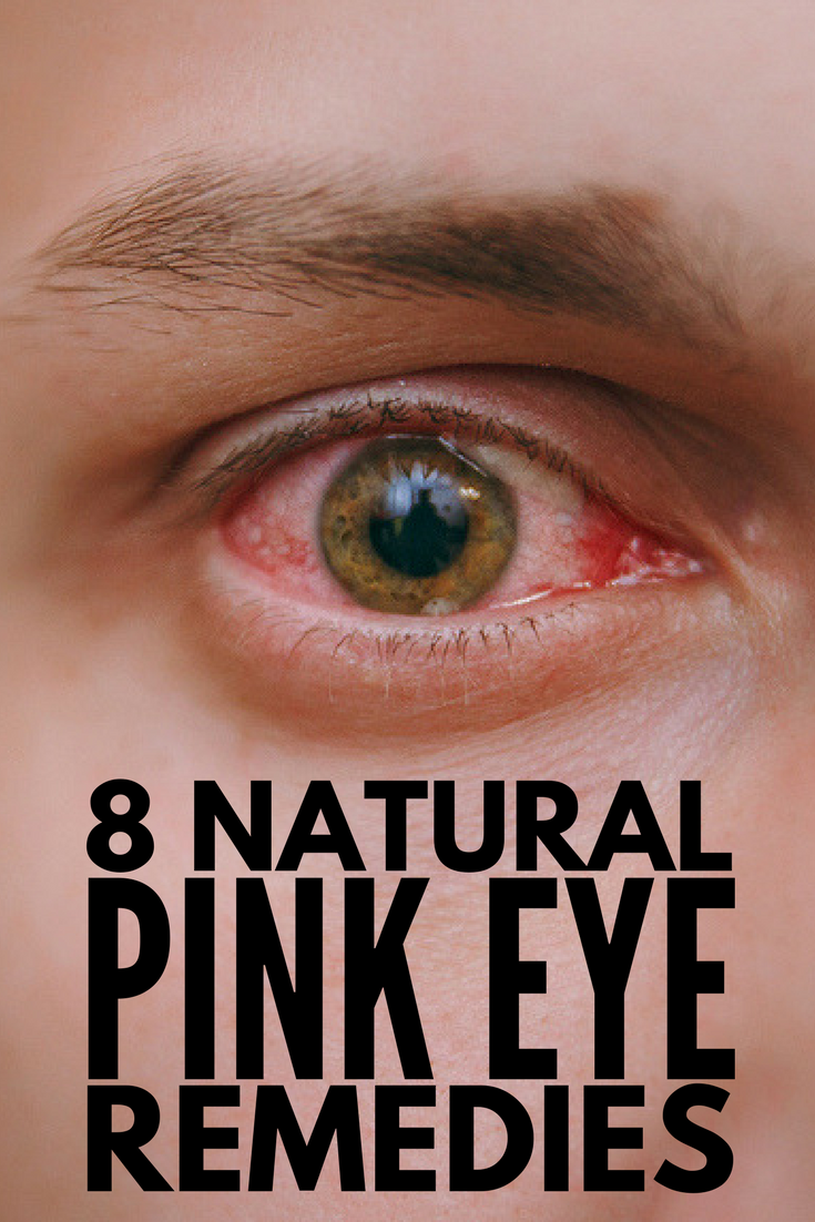 Natural Remedies For Pink Eye In Kids