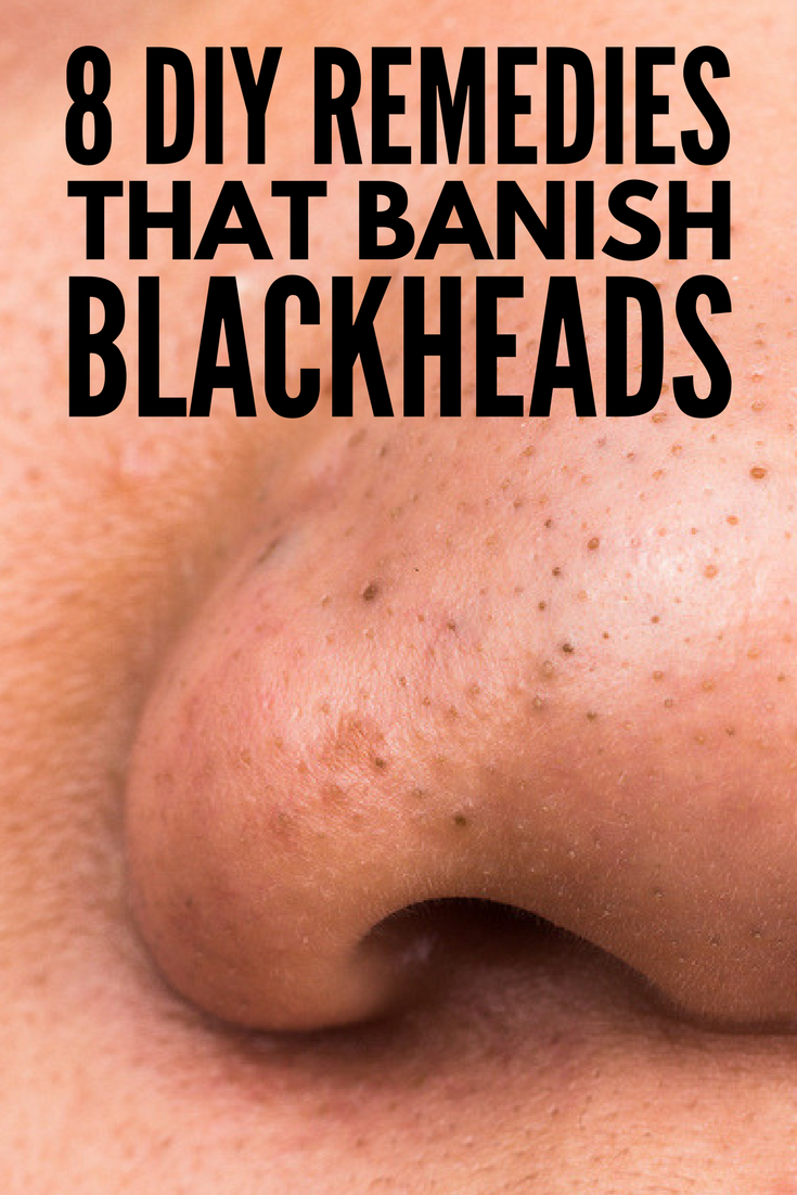 How to Get Rid of Blackheads | Looking for the best way to remove blackheads naturally? We're sharing 8 DIY ideas to help banish blackheads on your nose, cheeks, forehead, and chin fast (sometimes overnight!). Forget expensive store products and try these natural remedies using things like baking soda, honey, and sea salt for instant results and clear skin you'll love!