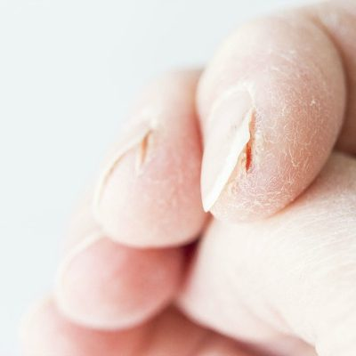 Severely Cracked Hands? 8 Tips & Remedies for Fast Relief