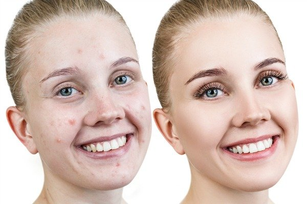 How to Get Rid of Acne Overnight | Want to know how to get rid of pimples and blemishes on your forehead, face, chest, and back fast (and naturally)? While these acne products and acne remedies won't get rid of your bad skin instantly, these at home DIY ideas use things like toothpaste, aloe vera, lemon, and tea tree oil and will work quickly to help in your quest for flawless skin.