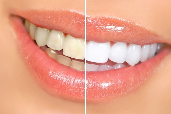 How to Whiten Teeth Naturally | If you want to know how to whiten your teeth at home with baking soda, with coconut oil, and other natural ingredients, this post is for you! While it's impossible to get pearly whites instantly – or even overnight – without traditional tooth whitening products and procedures, these DIY remedies will allow you to remove stains and discoloration safely. #whitenteeth #teethwhitening #teethwhiteningathome