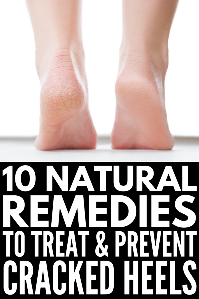 6 Home Remedies for Cracked Heels | If you're looking for simple DIY remedies to prevent the development of cracked, dry skin on your heels and feet, we're sharing 6 natural remedies that work! From the best creams, salves, and beauty products, to foot soaks and natural exfoliators, we're teaching you how to get rid of cracked heels - and how to get beautiful feet you're proud to show off! #crackedheels #crackedfeet #dryskin #naturalremedies