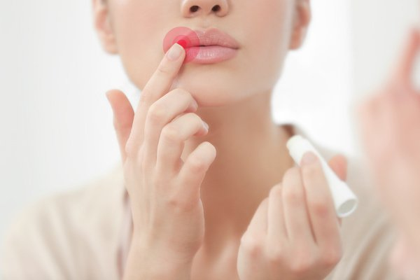 Fast and Effective: 12 Natural Cold Sore Remedies that Work