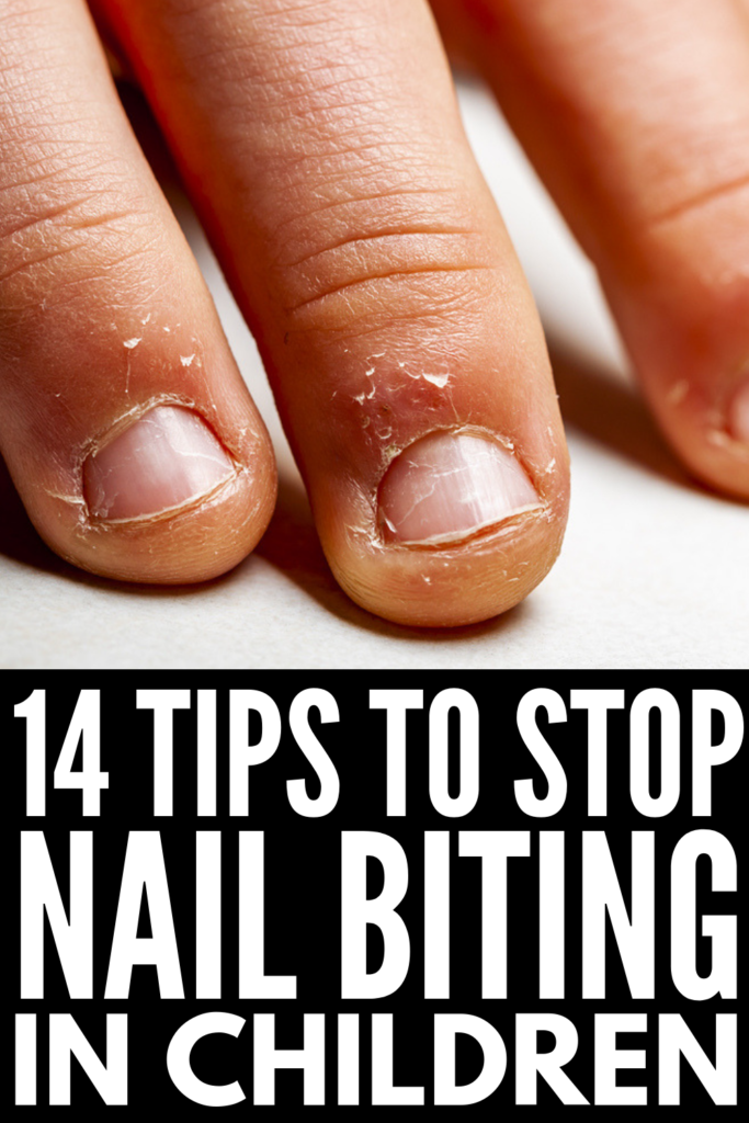 How to Get Kids to Stop Biting Their Nails | If you're looking for natural tips and remedies to stop nail biting, we're sharing 7 tips that actually work! We're also sharing all the facts about nail biting, including common causes and recommended alternatives you can use to help replace the habit with something healthier. No matter how severe your child's nail biting gets, rest assured it can be fixed! #bitingnails #stopbitingnails #naturalremedies