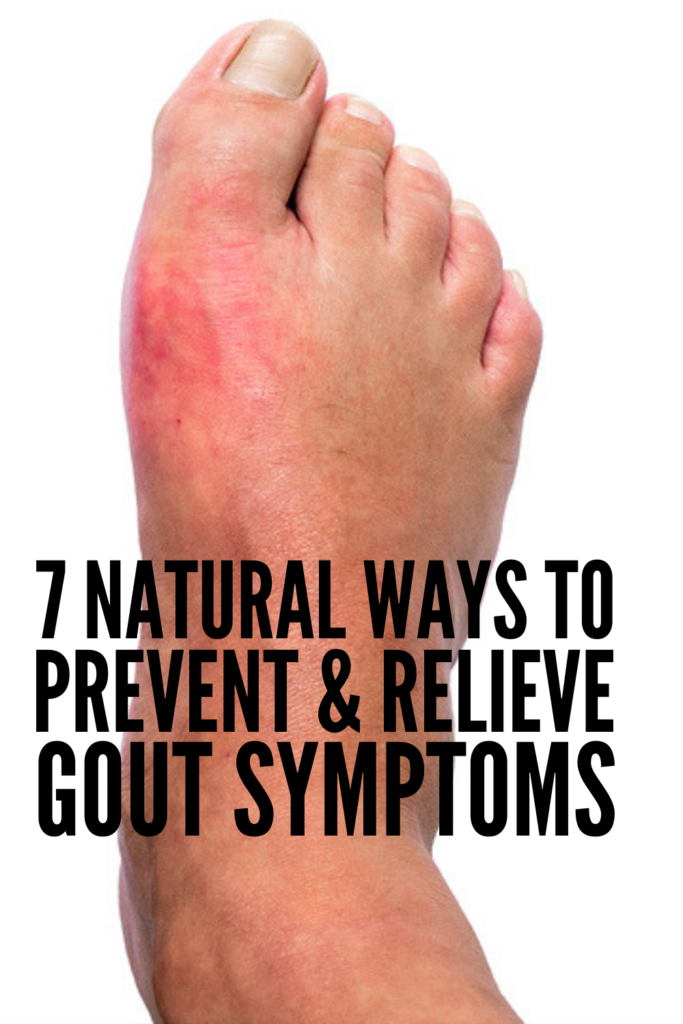 7 Gout Remedies to Relieve Pain Fast | If you want to know how to get rid of gout and the pain and inflammation it causes naturally, this post is for you. Learn to recognize the immediate signs of an impending gout attack, foods and diets to avoid, and other natural remedies to prevent a gout flare and treat it quickly! #gout #goutremedies #gouttreatment