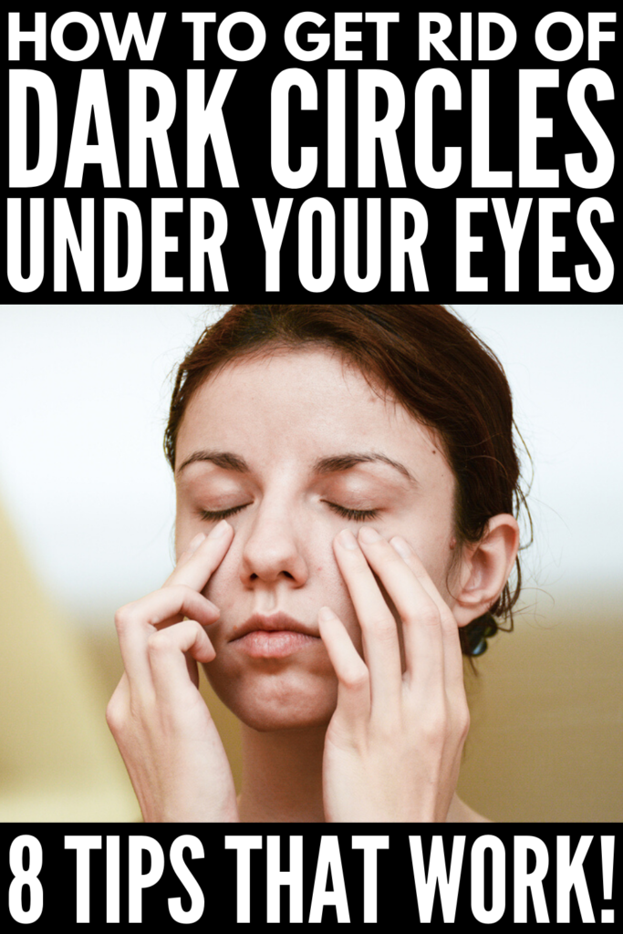 How to Get Rid of Dark Circles Under Your Eyes | If you're looking for the perfect remedy to banish under eye circles, this post is for you! We're sharing common causes of dark under eye circles, along with the best DIY remedies, treatments, and store bought products and creams to help remove darkness and prevent puffiness! #undereyecircles #undereyebags