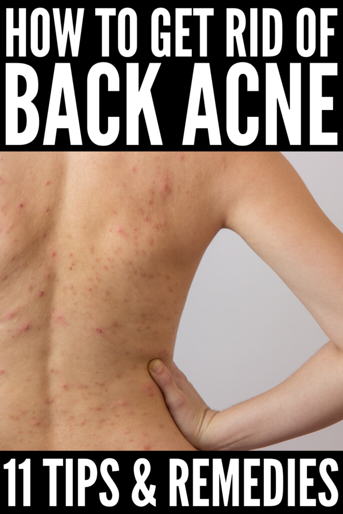 How to Get Rid of Back Acne | If you want to know what causes back acne, how to prevent it, how to treat it, and the best back acne remedies to try, this post is for you! Why there aren't any DIY natural treatments that work overnight (at least not that we know of!), these tips and products work fast. Whether you have occasional hormonal acne, or chronic cystic chest and back acne, it is possible to treat it at home so you can look and feel your best year-round!