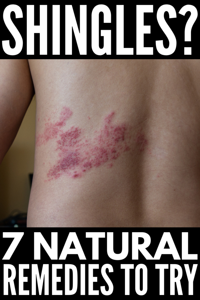 7 Natural Remedies for Shingles | If you're looking for natural treatments to manage the itching and pain of shingles, this post is for you! We're sharing some background information (what is shingles? what causes shingles? how can I prevent shingles?) as well as the best homemade DIY shingles relief treatments to help you feel better sooner. Whether you have shingles on the side of your torso or on your forehead, face, or neck, these tips work!