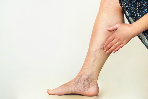 How to Get Rid of Varicose Veins | If you have mild to moderate varicose veins, this post has lots of great information to help you determine the best treatment for you. From knowing the symptoms and causes of varicose veins, to understanding how to prevent varicose veins from getting worse, to home remedies and natural treatments, we're sharing lifestyle changes, exercises, yoga poses, essential oils, and many other DIY treatment options for fast relief.