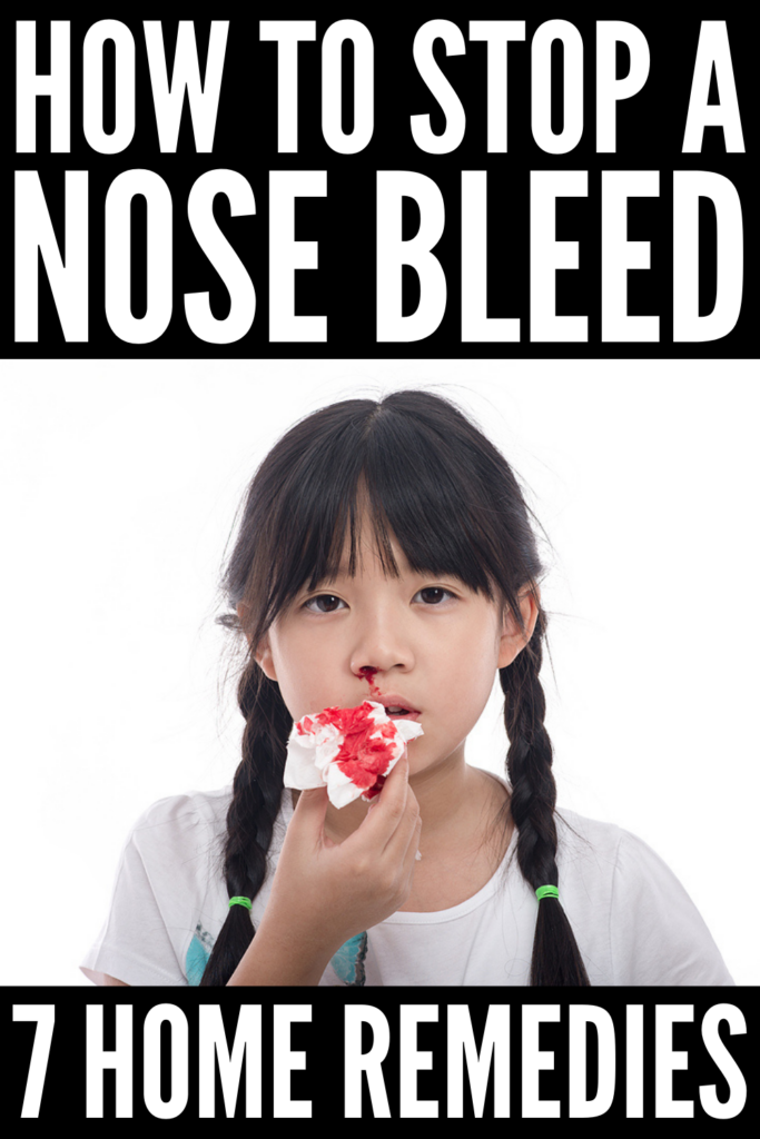 7 Natural Nose Bleed Remedies That Work | If you want to know how to stop nose bleeding at home naturally, we've got tips and tricks to help! We're sharing lots of helpful information, including what causes nose bleeds, how to prevent nose bleeds, and our best home remedies to stop a nose bleed fast. Whether you're looking for tips to stop nose bleeds in kids or adults, we've got you covered!