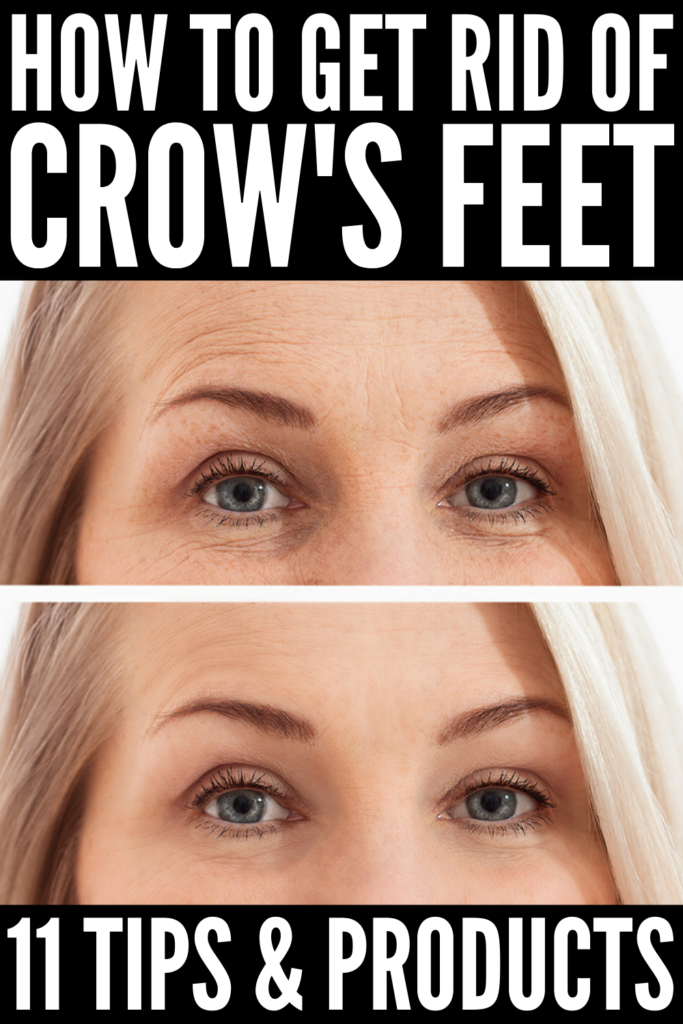 How to Get Rid of Crow's Feet | If you're looking for tips and remedies to prevent and reduce the appearance of eye wrinkles, this post is for you! While botox, filler, and micro-needling are very effective in smoothing the skin, there are other, natural ways to reduce the appearance of fine lines. We're sharing our best skincare tips and anti-aging products (and yes, we've included drugstore products!) you can start today using to get rid of laugh lines so you look and feel your best!