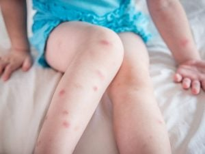 9 Natural Mosquito Bite Remedies that Work | Mosquito bites don't just make you itchy - they can also cause swelling and discomfort, and in some cases, they can become infected. While using a good repellent can help prevent mosquito bites, we don't always have it on hand when we need it. If you want to know how to get rid of mosquito bites and the symptoms they cause fast, try these natural DIY remedies for kids and for adults at home for quick relief!
