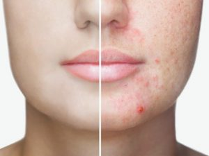 How to Get Rid of Acne Scars | If you want to know how to get rid of acne scars on the face, body, back, and other parts of your body fast, this post is for you! We're sharing 5 DIY homemade natural remedies for acne scars using ingredients like apple cider vinegar, aloe vera, coconut oil, and honey, as well as 5 skin care products that fade acne scars fast. While these acne remedies won't work overnight, you'll probably start seeing results in a week! #acne #acnescars #getridofacnescars