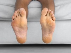 7 Remedies for Athlete's Foot | Also known as 'tinea pedis', athlete's foot is highly contagious and is pretty uncomfortable. We're sharing everything you need to know, including the signs, symptoms, and causes, prevention tips, and home remedies to teach you how to get rid of athlete's foot once and for all. From hydrogen peroxide and baking soda, to tea tree oil and neem oil, to apple cider vinegar and sea salt, this post explains how to treat athlete's foot naturally!